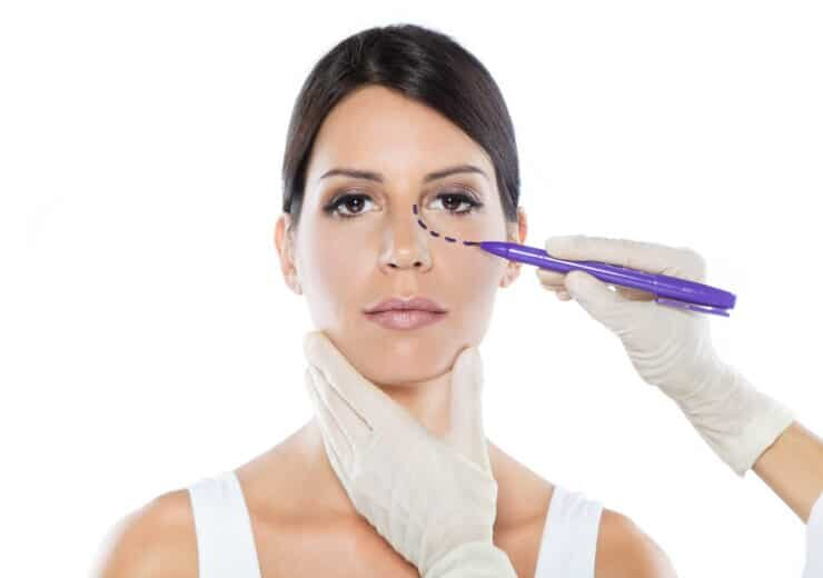 Plastic surgeon drawing dashed lines on her patient's face.